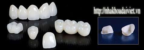 răng-sứ-cercon-zirconia