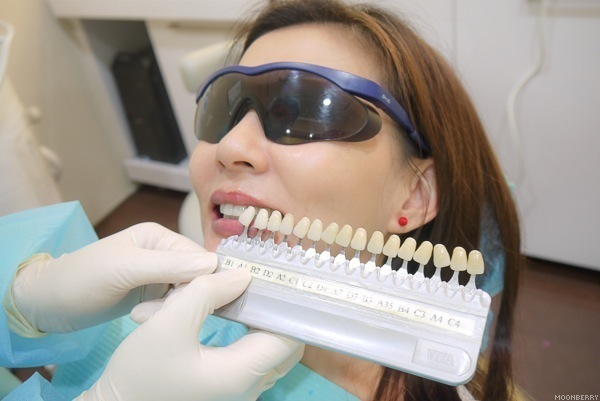 Phương pháp tấy trăng răng
