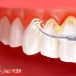 Mảng bám dính lâu ngày tại răng tạo thành cao răng
