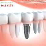 Cắm ghép implant nha khoa