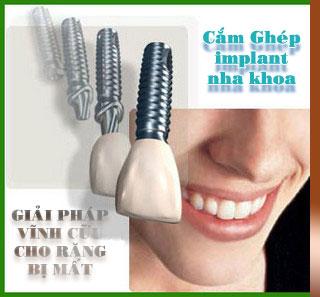 implant nha khoa giải pháp cho răng bị mất