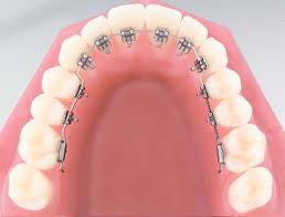 niềng răng sứ mặt trong