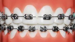 niềng răng sứ kim loại