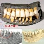Phục hình khảo cổ cấy ghép implant