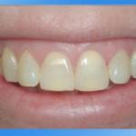 răng trở nên xỉn màu theo thời gian