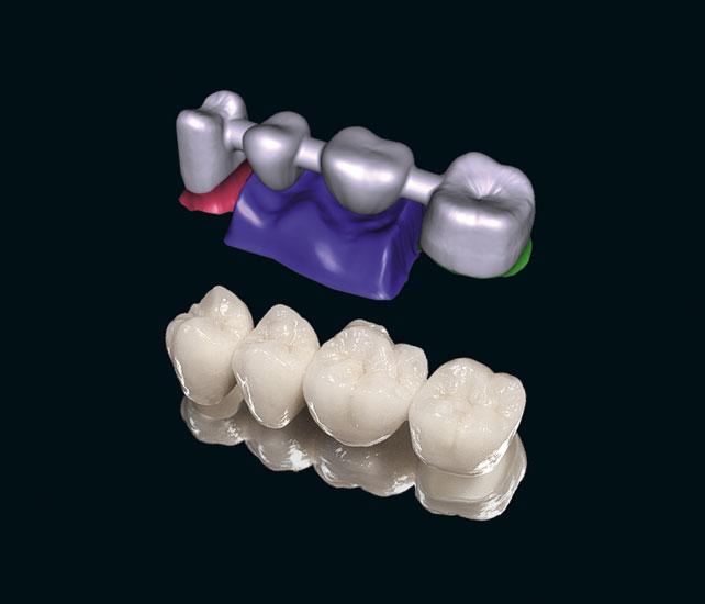 Nha khoa Đại Việt tự hào cung cấp răng sứ làm đẹp cho bạn