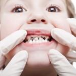 Chăm sóc răng miệng tránh sâu răng