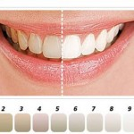 Tẩy trắng răng sáng bóng