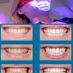 Tẩy trắng răng bằng công nghệ LED