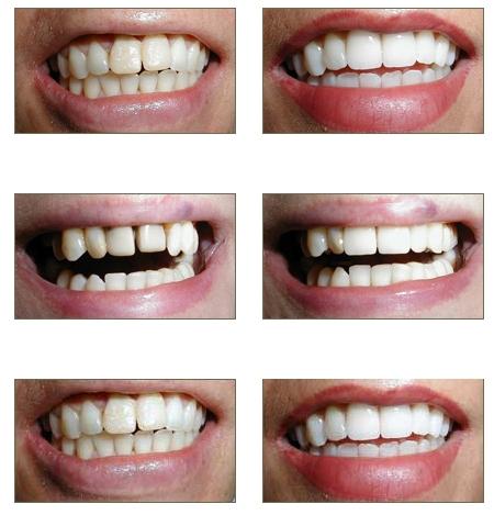 Dịch vụ tẩy trắng răng nha khoa