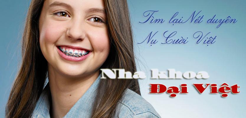 Tư vấn chi phí niềng răng hô