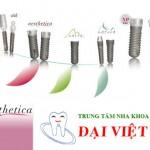 Implant Aesthetica