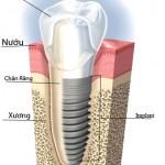 Mô tả về cấu tạo của implant