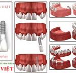 implants-nha-khoa