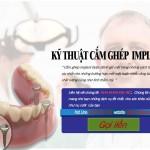 Kỹ thuật cắm ghép implant