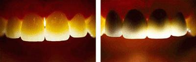 Hình ảnh: Răng ngã màu