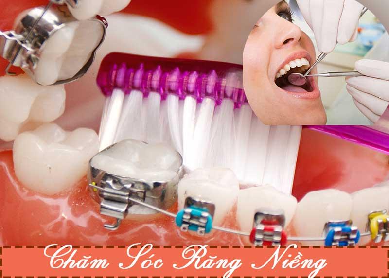 Chăm sóc răng miệng khi mắc cài niềng răng