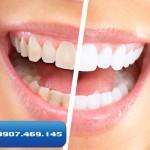 hỗ trợ tẩy trắng răng