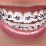 Hình ảnh niềng răng minh họa nguồn ảnh Từ internet