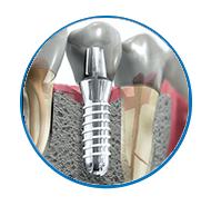 Trung tâm cắm ghép implant nha khoa - 5
