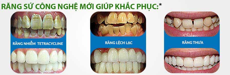 khacphuc