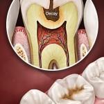 Sâu răng ảnh minh họa nguồn pinterest