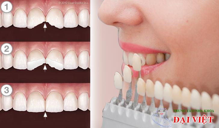 Trám thẩm mỹ cho răng sâu bằng composite.