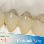 Hình ảnh răng sứ titan trong phòng Lab