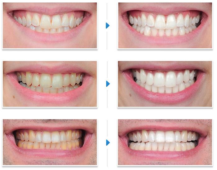 Tẩy trắng răng hình ảnh minh họa