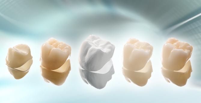 Hình ảnh răng sứ thẩm mỹ