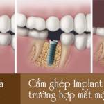 Cắm ghép implant cho trường hợp mất răng cửa