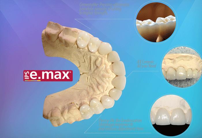 Răng sứ emax press hình minh họa
