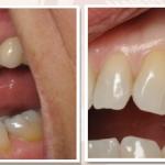 Cắm ghép implant cho trường hợp mất 1 răng