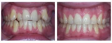 Trường hợp Niềng răng trước và sau khi điều trị