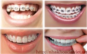 Hình ảnh Các loại niềng răng