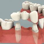 Răng sứ tháo lắp