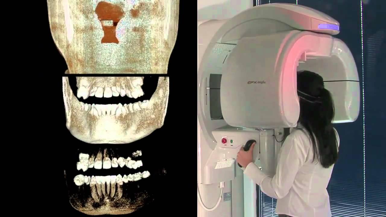 ConeBeam CT 3D