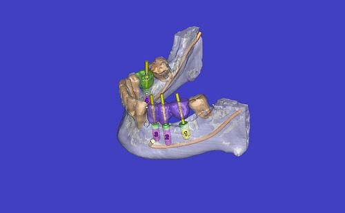 Simplant 3D