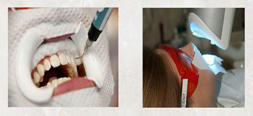 Tẩy trắng răng băng công nghệ led