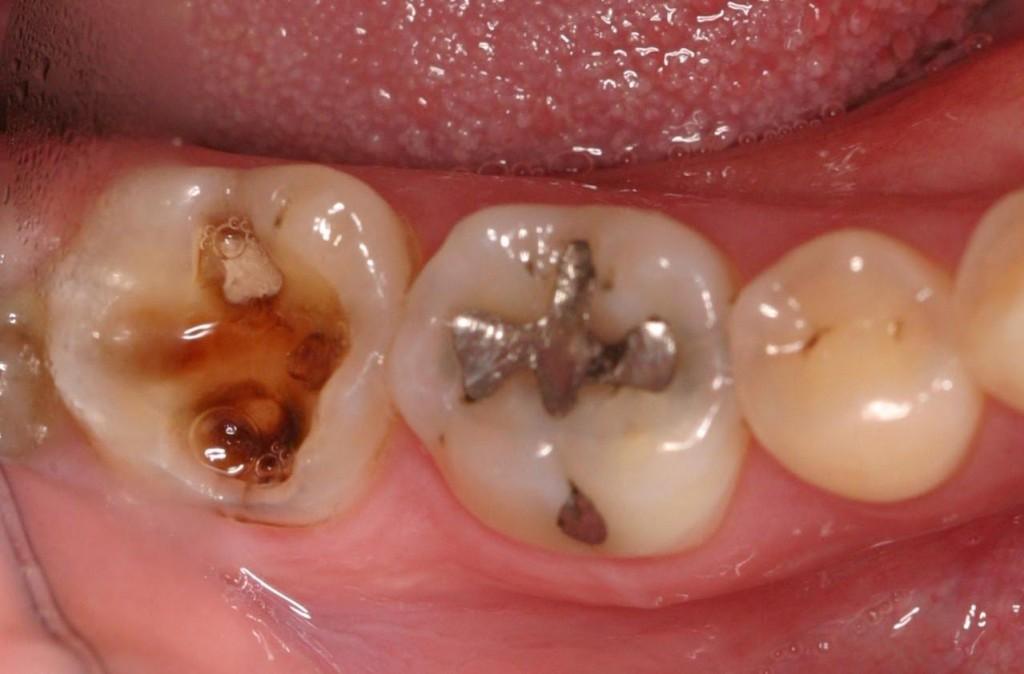 Trám răng sâu như thế nào để được lâu