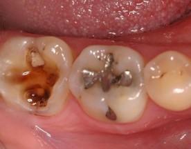 Răng sâu