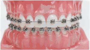 Hình ảnh mô phỏng niềng răng kim loại