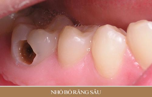 Biểu hiện của răng bị sâu