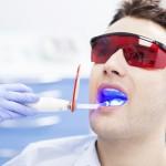Tẩy trắng răng bằng công nghệ mới