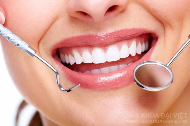 bọc răng sứ hình ảnh minh họa