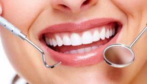 Bọc răng sứ giữ được bao lâu – Nha Khoa Đại Việt