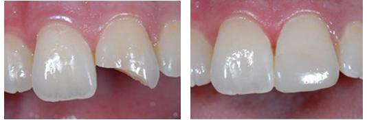 Khắc phục tình trạng răng cửa bị bể hình ảnh minh họa