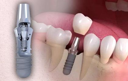 clinica_aureo_implantes_straumann
